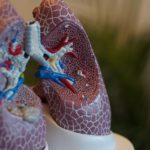 Mucoviscidose, bronches et poumons